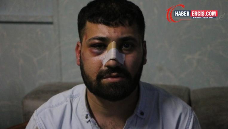 Gözaltında işkence gören kişi 'polise mukavemet' ile suçlandı