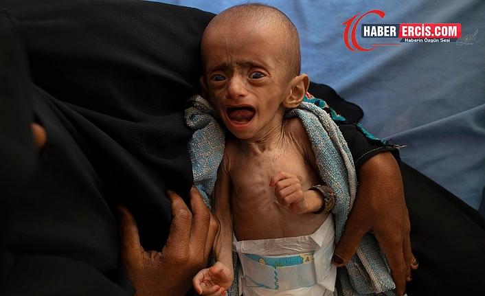 Sahel'de 18 milyon çocuk aç