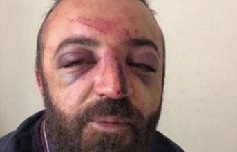 HDP İl Yöneticisi ırkçı saldırıda yaralandı