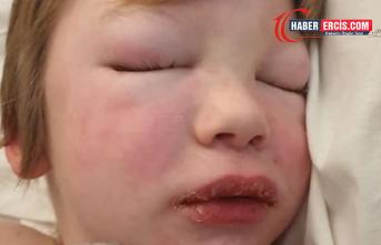 Kovid-19'u atlatan 7 yaşındaki çocukta ölümcül sendrom