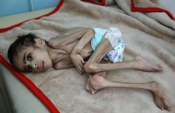 Yemen'de açlığın tablosu: 7 yaşında 7 kilo
