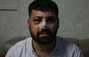 Gözaltında işkence gören kişi 'polise mukavemet'...