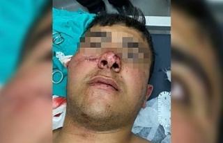 Erciş'te Polis kurşunu bir çocuğu yaraladı