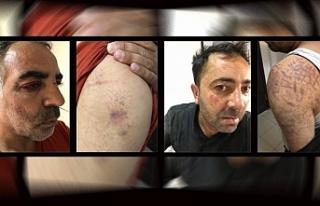 Edirne'de 2 kişi darp edilerek gözaltına alındı