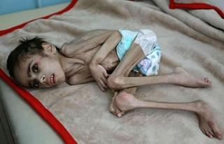 Yemen'de 400 bin çocuk açlıktan ölmek üzere