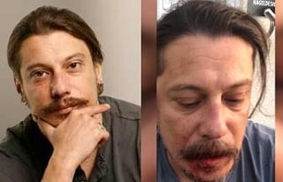Gazeteci Erk Acarer saldırı anını anlattı