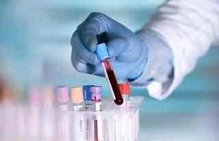 50'den fazla kanser türünü erken teşhis etmesi...