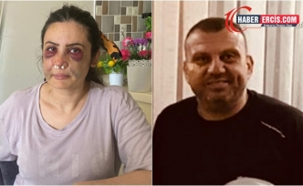 Elbasan'ı katletmeye çalışan fail gözaltına alındı