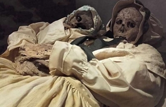 Bilinen En Eski Sezaryen Kanıtı Macar Mumyada Bulundu