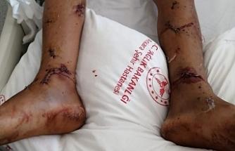 İdil'de cisim patlaması sonucu bir çocuk yaralandı