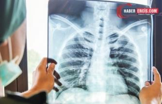 Pandemi döneminde akciğer kanseri tanısı oranı 5 kat arttı