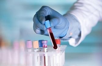 50'den fazla kanser türünü erken teşhis etmesi umulan kan testi deneniyor