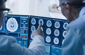 Araştırma: Koronavirüsü kalıcı beyin hasarına neden oluyor