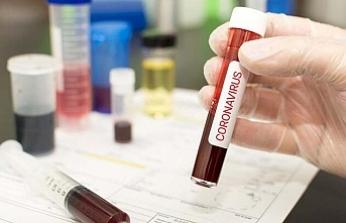 Koronavirüsü öldüren madde keşfedildi