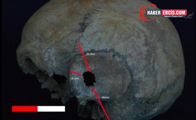 İzmir'deki Antik Nif Dağı İnsanları Hangi Hastalıkları Geçirdi?