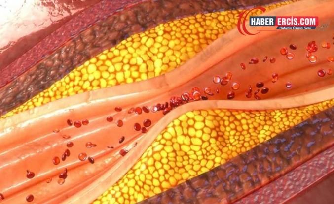 Koroner kalp hastalığı nedir?