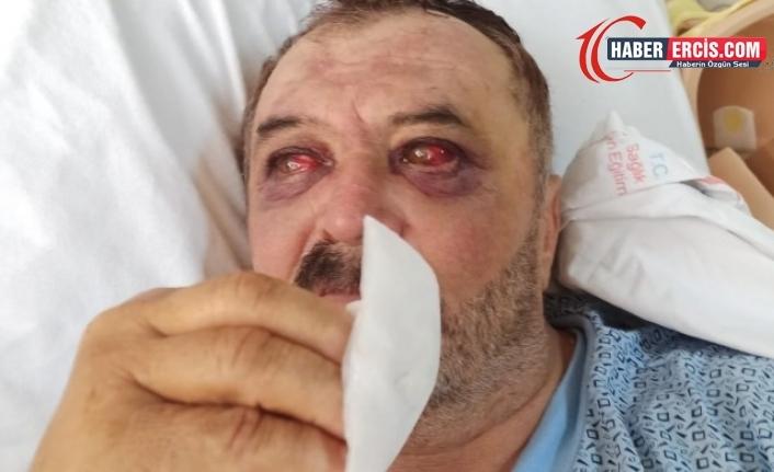 Van'da Şiban'ın gördüğü işkence fotoğraflandı